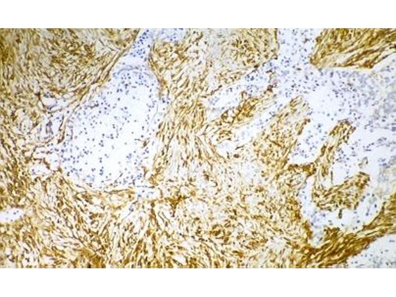 image for anti-Vimentin (VIM) antibody (ABIN335382)