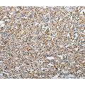 Immunohistochemistry of Human thyroid cancer using TSC2 Polyclonal Antibody at dilution of 1:25