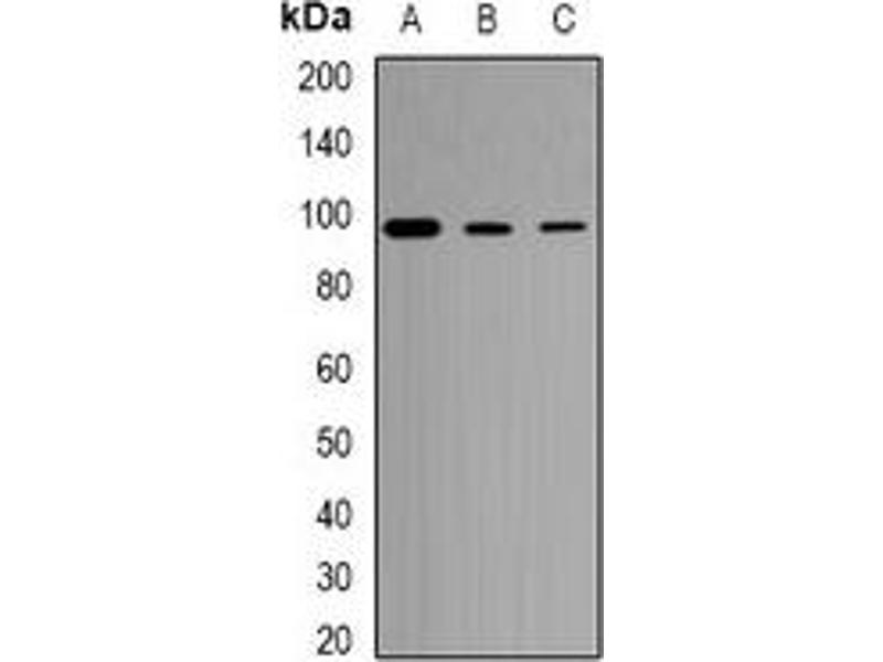 Western Blotting (WB) image for anti-Toll-Like Receptor 1 (TLR1) antibody (ABIN3197579)