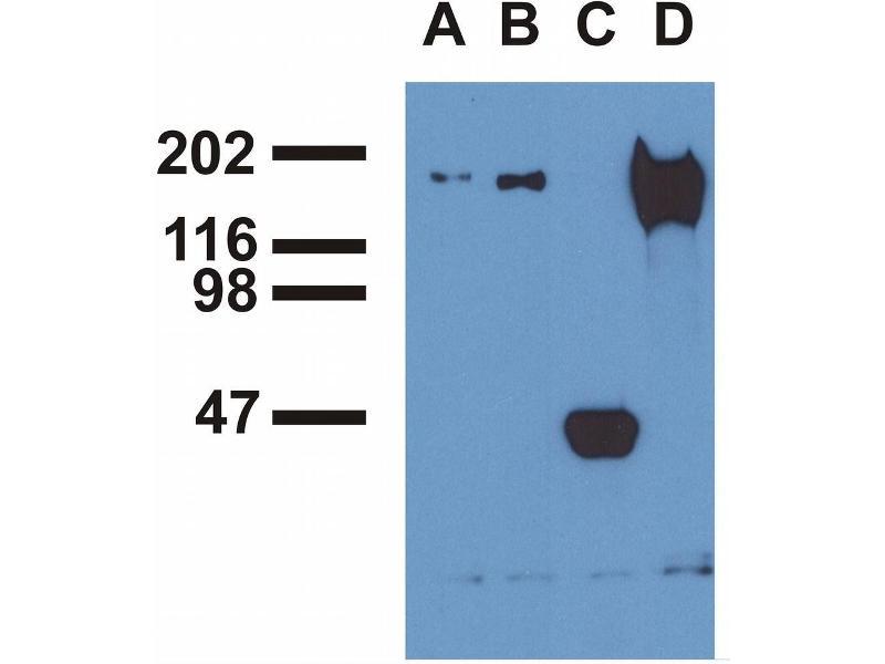 Immunoprecipitation (IP) image for anti-EGFR antibody (Epidermal Growth Factor Receptor) (Tyr1173) (ABIN343717)