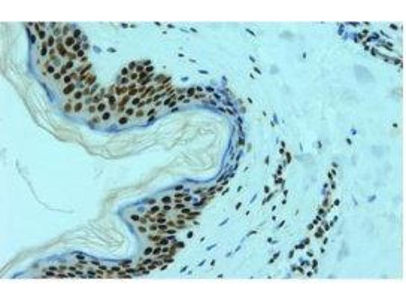 image for anti-HNRNPL antibody (Heterogeneous Nuclear Ribonucleoprotein L) (ABIN108588)