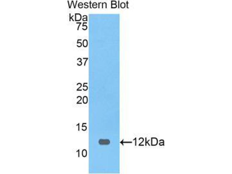 Western Blotting (WB) image for anti-Preferentially Expressed Antigen in Melanoma (PRAME) (AA 416-502) antibody (ABIN2921344)