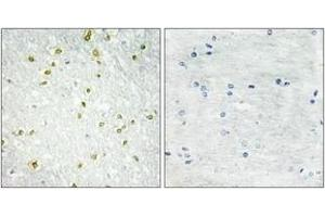Image no. 1 for anti-Small Nuclear RNA Activating Complex, Polypeptide 5, 19kDa (SNAPC5) (AA 10-59) antibody (ABIN1533550)