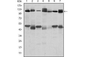 Western Blotting (WB) image for anti-CBL antibody (Cas-Br-M (Murine) Ecotropic Retroviral Transforming Sequence) (ABIN968993)