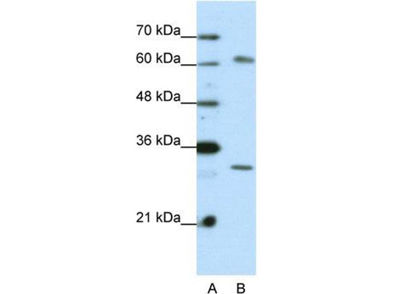 Western Blotting (WB) image for anti-AU RNA Binding Protein/enoyl-CoA Hydratase (AUH) (C-Term) 抗体 (ABIN2778782)
