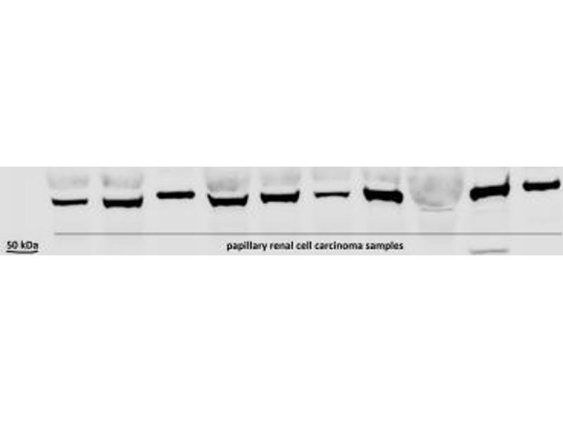Western Blotting (WB) image for anti-Hypoxia Inducible Factor 3, alpha Subunit (HIF3A) (AA 250-350), (Internal Region) antibody (ABIN250964)