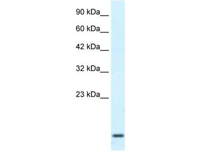 Western Blotting (WB) image for anti-Homeobox A1 (HOXA1) (Middle Region) antibody (ABIN183082)