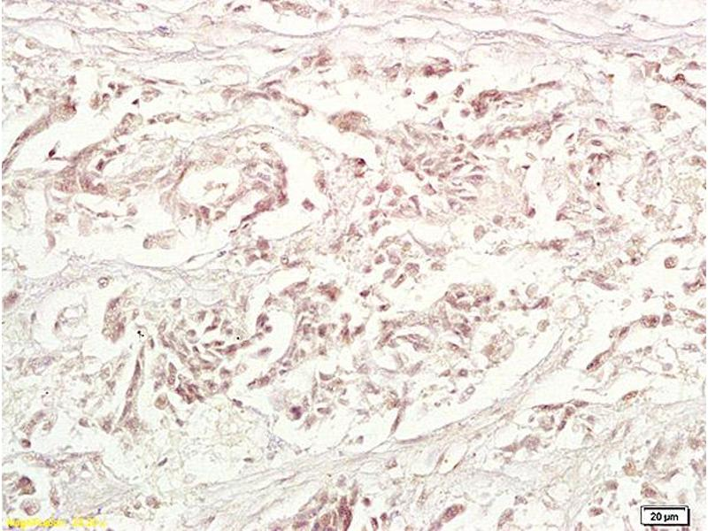 Immunohistochemistry (IHC) image for anti-TRAF1 antibody (TNF Receptor-Associated Factor 1) (AA 366-416) (ABIN673464)