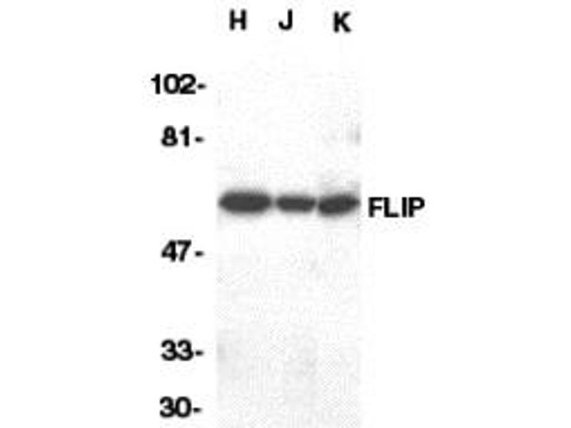 Western Blotting (WB) image for anti-CFLAR antibody (CASP8 and FADD-Like Apoptosis Regulator) (C-Term) (ABIN2439829)