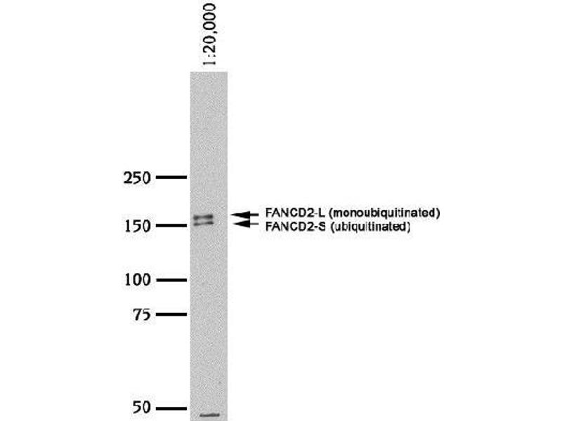 Western Blotting (WB) image for anti-Fanconi Anemia, Complementation Group D2 (FANCD2) (N-Term) antibody (ABIN151329)