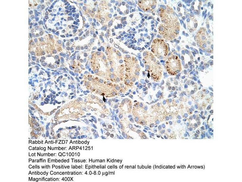 Immunohistochemistry (IHC) image for anti-FZD7 antibody (Frizzled Family Receptor 7) (C-Term) (ABIN2776708)