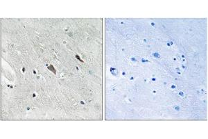 Immunohistochemistry (IHC) image for anti-GRB2-Associated Binding Protein 2 (GAB2) (pTyr643) antibody (ABIN1847778)