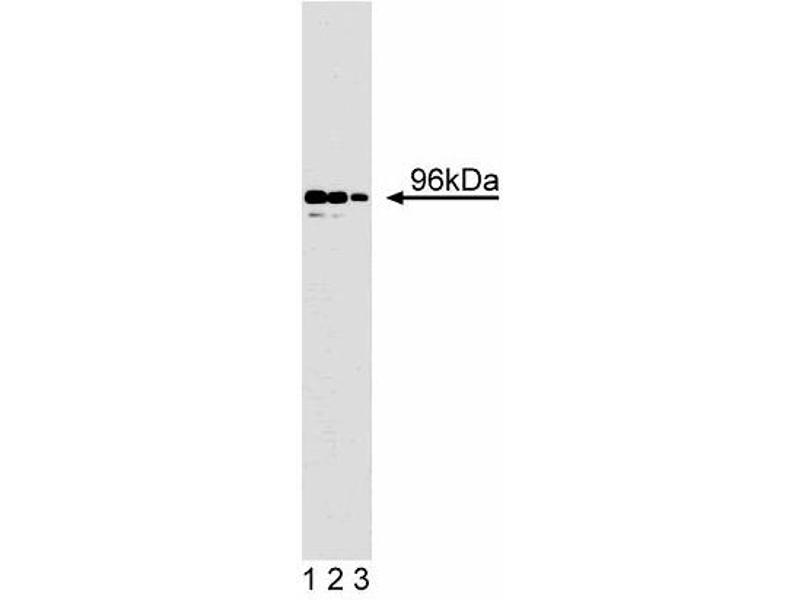 Western Blotting (WB) image for anti-Disabled 2, Mitogen-Responsive Phosphoprotein (DAB2) (AA 31-45) antibody (ABIN967989)