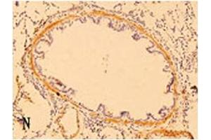 Image no. 1 for anti-Defensin beta 3 (DEFB3) (AA 6-22) antibody (ABIN109988)