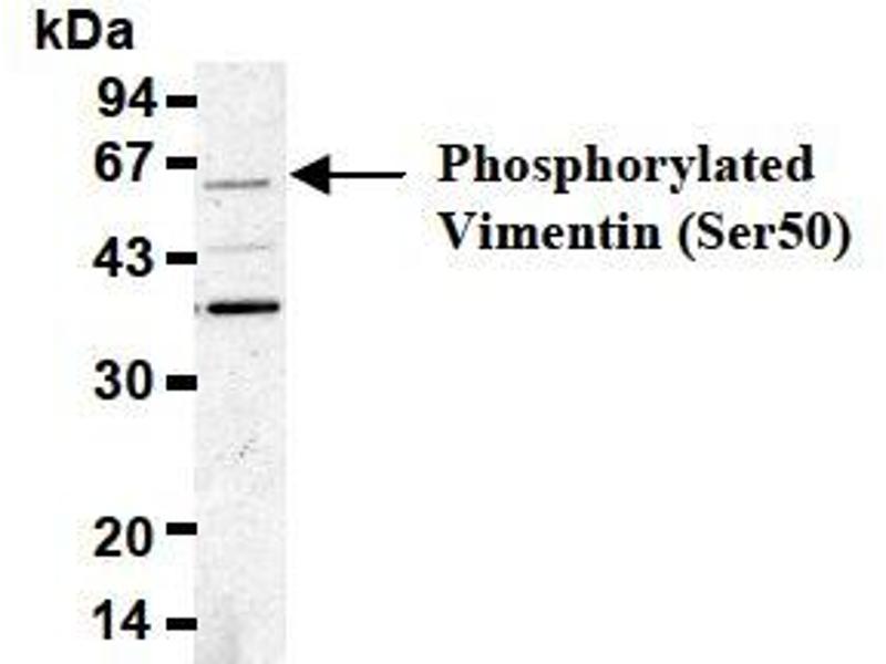 Western Blotting (WB) image for anti-Vimentin (VIM) (pSer50) antibody (ABIN1449160)