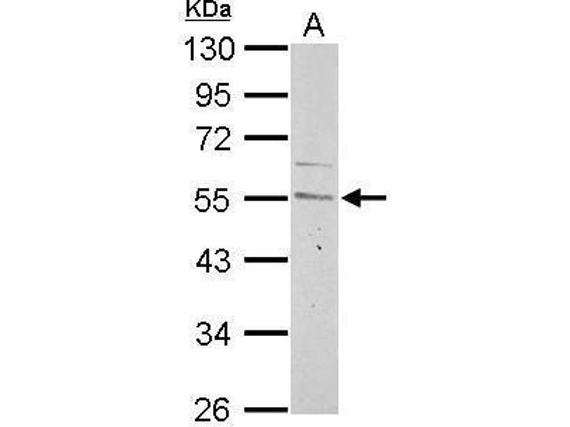 Western Blotting (WB) image for anti-Cyclin A2 (CCNA2) (Center) antibody (ABIN2855543)