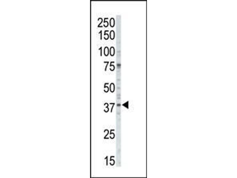 Western Blotting (WB) image for anti-CSNK1A1 antibody (Casein Kinase 1, alpha 1) (AA 309-337) (ABIN391597)