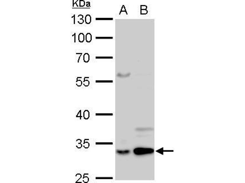 Western Blotting (WB) image for anti-Annexin V antibody (Annexin A5) (Center) (ABIN2855592)