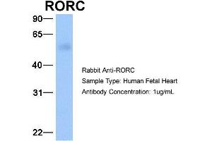 Image no. 1 for anti-RAR-Related Orphan Receptor C (RORC) (C-Term) antibody (ABIN2777823)