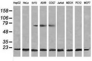 Image no. 6 for anti-NADH Dehydrogenase (Ubiquinone) 1 beta Subcomplex, 10, 22kDa (NDUFB10) antibody (ABIN1499669)
