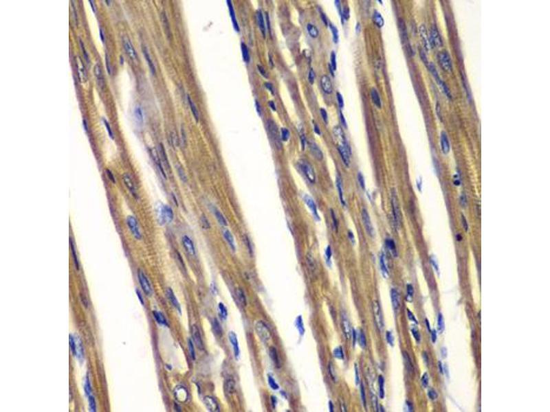Image no. 1 for anti-Protein tyrosine Phosphatase, Non-Receptor Type 2 (PTPN2) antibody (ABIN6568912)