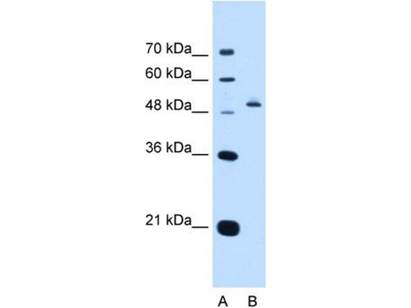 Western Blotting (WB) image for anti-Paired Box 8 (PAX8) (N-Term) antibody (ABIN2783221)