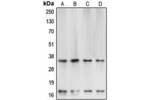Western Blotting (WB) image for anti-Caspase 3, Apoptosis-Related Cysteine Peptidase (CASP3) (Center) antibody (ABIN2705682)