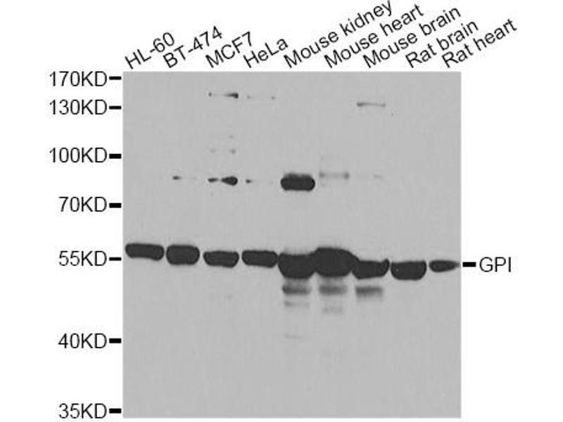Image no. 3 for anti-Glucose-6-Phosphate Isomerase (GPI) antibody (ABIN6567873)