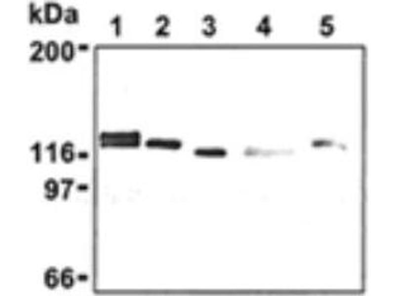 Western Blotting (WB) image for anti-DBN1 antibody (Drebrin 1) (ABIN151450)