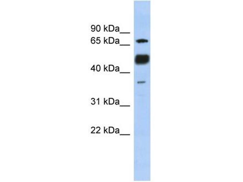 Western Blotting (WB) image for anti-Nuclear Factor of Activated T-Cells, Cytoplasmic, Calcineurin-Dependent 1 (NFATC1) (N-Term) antibody (ABIN2774670)