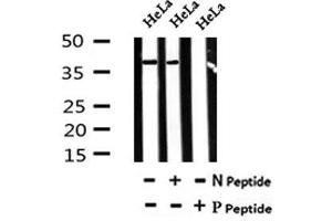 Image no. 4 for anti-Connective Tissue Growth Factor (CTGF) (pSer118) antibody (ABIN6269491)