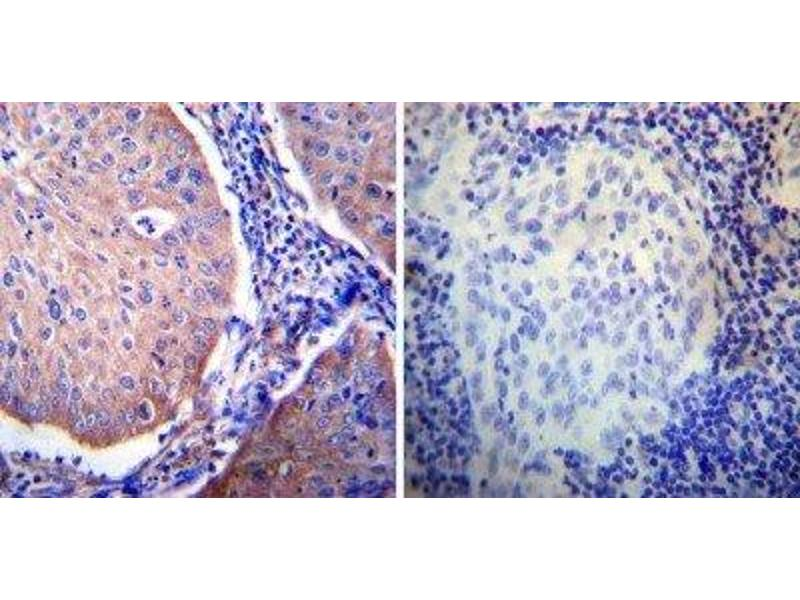 Immunohistochemistry (Paraffin-embedded Sections) (IHC (p)) image for anti-Nuclear Receptor Subfamily 3, Group C, Member 1 (Glucocorticoid Receptor) (NR3C1) antibody (ABIN152786)