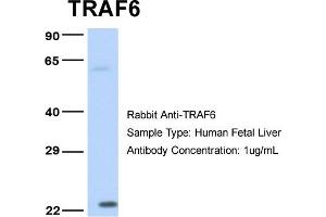 Western Blotting (WB) image for anti-TRAF6 antibody (TNF Receptor-Associated Factor 6) (Middle Region) (ABIN2779305)