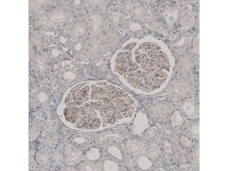 Immunohistochemistry (Paraffin-embedded Sections) (IHC (p)) image for anti-phospholipase A2 Receptor 1, 180kDa (PLA2R1) antibody (ABIN4345962)