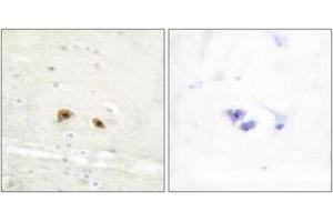 Image no. 1 for anti-Early Growth Response 3 (EGR3) (AA 338-387) antibody (ABIN1533840)