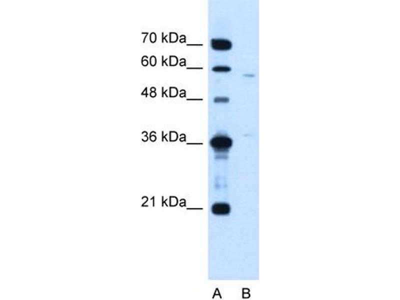 Western Blotting (WB) image for anti-MGC39633 (N-Term) antibody (ABIN310643)