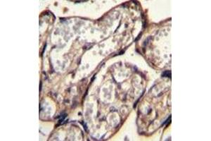 Immunohistochemistry (Paraffin-embedded Sections) (IHC (p)) image for anti-Insulin-Like Growth Factor 2 (IGF2) (AA 46-77), (Middle Region) antibody (ABIN952912)