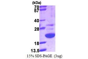 Image no. 1 for Galectin-Related Protein (GRP) (AA 1-172) protein (His tag) (ABIN667551)