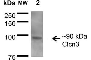 Image no. 2 for anti-Chloride Channel 3 (CLCN3) (AA 98-115) antibody (FITC) (ABIN2485481)