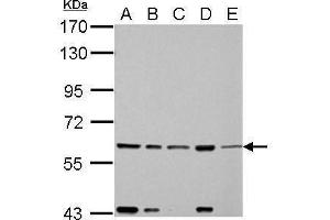 Image no. 5 for anti-Fas-Activated serine/threonine Kinase (FASTK) (C-Term) antibody (ABIN2855426)