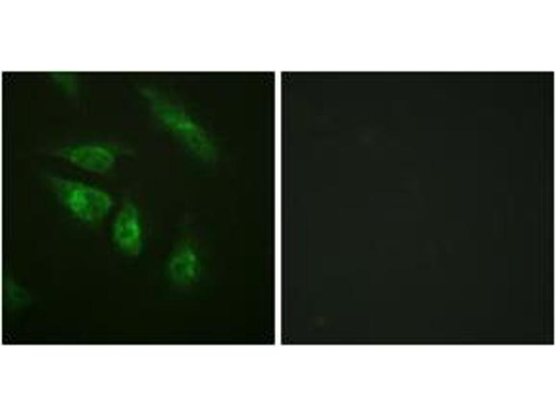 Immunofluorescence (IF) image for anti-Nuclear Factor of Activated T-Cells, Cytoplasmic, Calcineurin-Dependent 4 (NFATC4) (AA 642-691) antibody (ABIN1532367)