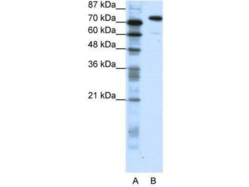 Western Blotting (WB) image for anti-SATB1 antibody (SATB Homeobox 1) (C-Term) (ABIN183628)