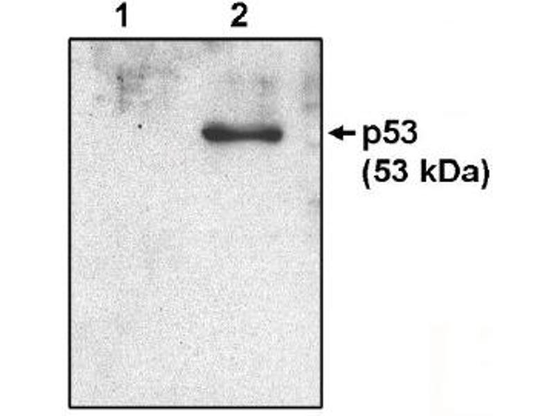 Western Blotting (WB) image for anti-p53 antibody (Tumor Protein P53) (AA 371-380) (ABIN264449)