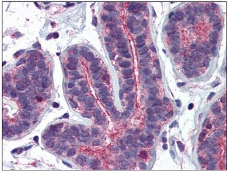 Immunohistochemistry (IHC) image for anti-RHOA antibody (Ras Homolog Gene Family, Member A) (AA 1-194) (ABIN782332)