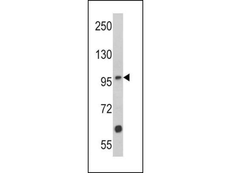 Western Blotting (WB) image for anti-MUSK antibody (Muscle, Skeletal, Receptor Tyrosine Kinase) (N-Term) (ABIN4336820)