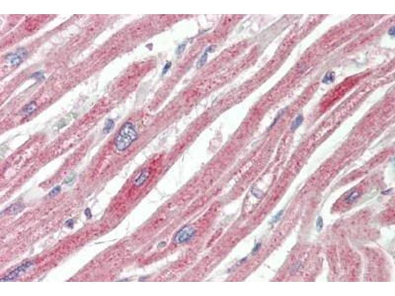 Immunohistochemistry (IHC) image for anti-Mitogen-Activated Protein Kinase 6 (MAPK6) (AA 683-694) antibody (ABIN1911983)