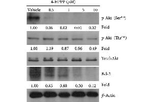 Image no. 11 for anti-B-Cell CLL/lymphoma 2 (BCL2) (N-Term) antibody (ABIN2857047)
