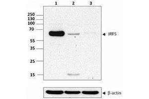 Western Blotting (WB) image for anti-Interferon Regulatory Factor 5 (IRF5) antibody (ABIN2666392)