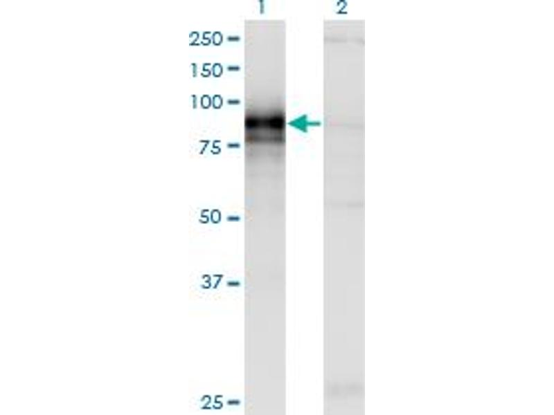 Western Blotting (WB) image for anti-Hedgehog Interacting Protein (HHIP) (AA 21-121) antibody (ABIN396574)