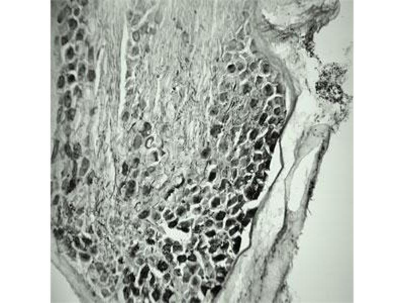 Immunohistochemistry (IHC) image for anti-Brain-Derived Neurotrophic Factor (BDNF) (Mature) antibody (ABIN571624)